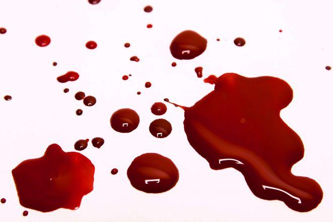 Hiện tượng khí hư ra kèm theo máu là dấu hiệu bệnh phụ khoa
