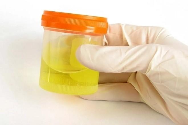 nước tiểu của phụ nữ mang thai thường sẽ có màu vàng nhạt đến trắng đục