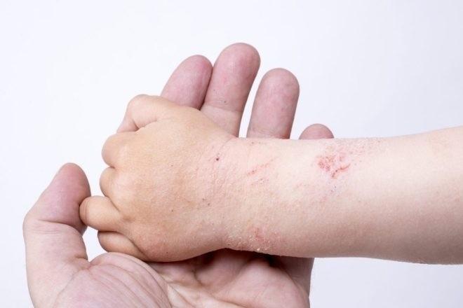 bệnh á sừng ở trẻ em