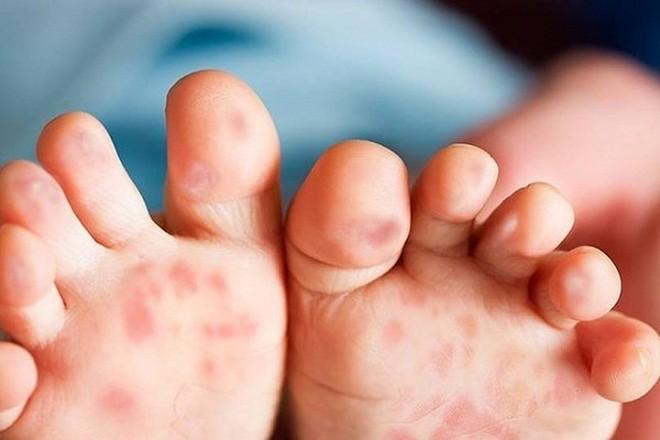 nổi bóng nước đỏ ở lòng bàn chân là một trong các triệu chứng bệnh tay chân miệng