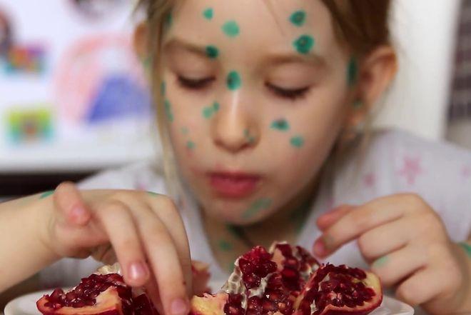 bé gái mắc bệnh thủy đậu ăn lựu