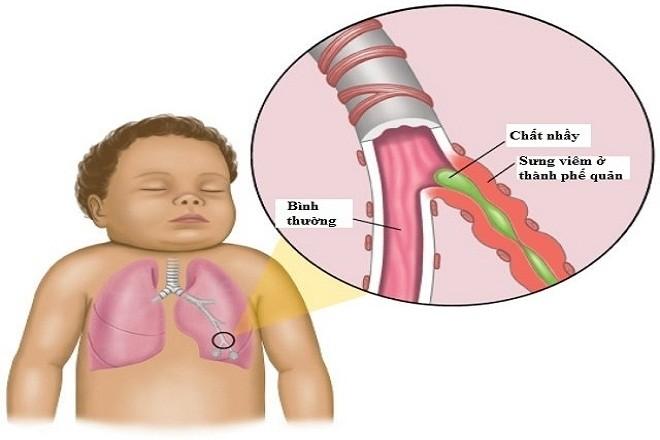 trẻ sơ sinh bị ho có đờm có thể là do bị viêm phế quản