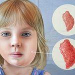 Bệnh quai bị ở trẻ em - triệu chứng, nguyên nhân và cách chữa trị hiệu quả