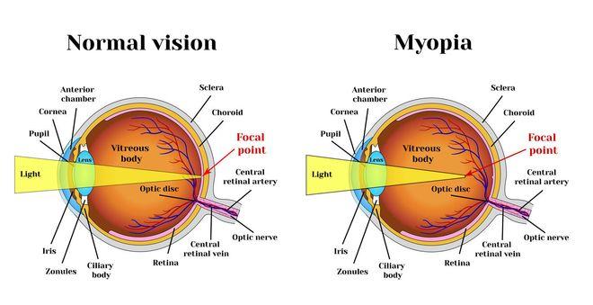 mắt cận thị và mắt thường