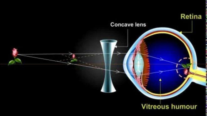 đeo kính khắc phục cận thị