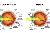 Loạn thị và cận thị cái nào nặng hơn?
