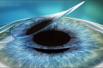 Chữa cận thị bằng laser hết bao nhiêu tiền và chữa ở đâu đáng tin cậy?
