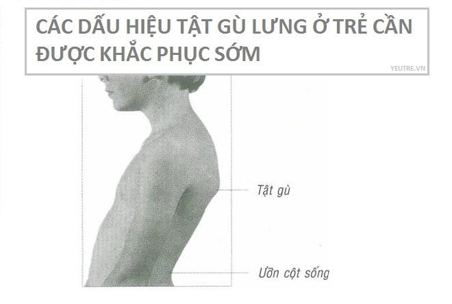 tật gù lưng