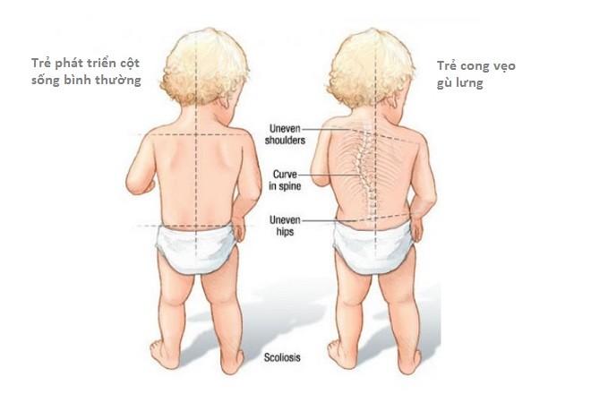 bệnh gù lưng ở trẻ nhỏ