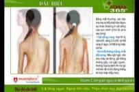 Bệnh gù vẹo cột sống