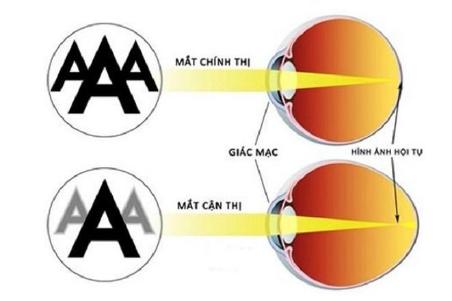 mô phỏng cơ chế hoạt động mắt thường và mắt cận thị