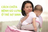 Cách chữa bệnh gù lưng ở trẻ sơ sinh bao gồm những phương pháp nào?