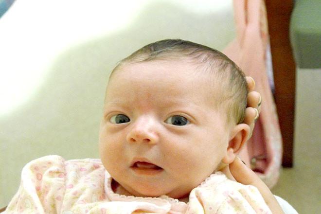Thóp bé bị lõm kèm theo tình trạng ít đi tè và bé ít tỉnh táo linh hoạt hơn bình thường - đây có thể là dấu hiệu con bị mất nước