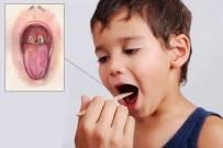 Bệnh bạch hầu ở trẻ em - căn bệnh nguy hiểm có thể phòng ngừa hiệu quả bằng tiêm vắc-xin