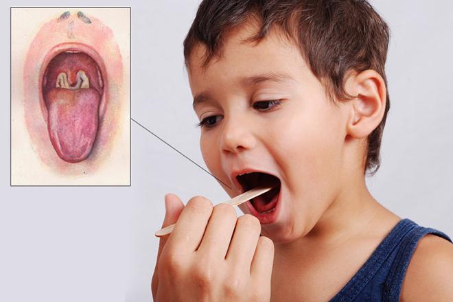Bệnh bạch hầu ở trẻ em
