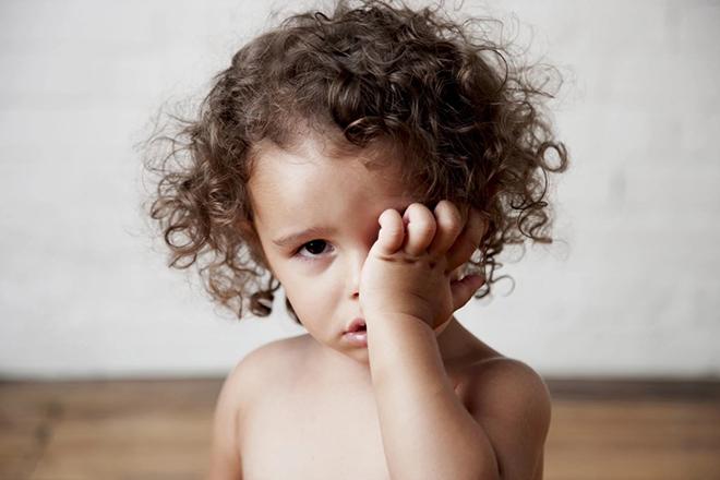 Bệnh đau mắt ở trẻ em cần phát hiện và điều trị kịp thời