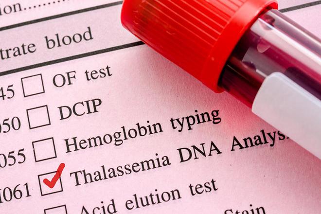 Xét nghiệm máu để kiểm tra về di truyền
