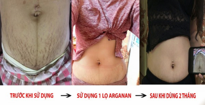 Chị Huyền sau 2 tháng sử dụng Arganan