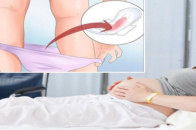 thay đổi dịch âm đạo