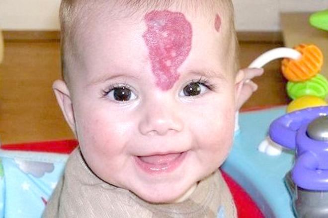 Bệnh u máu ở trẻ