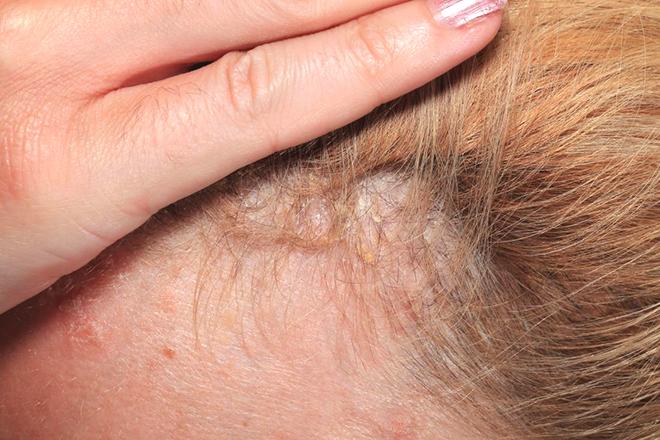 Bệnh nấm da đầu ở trẻ