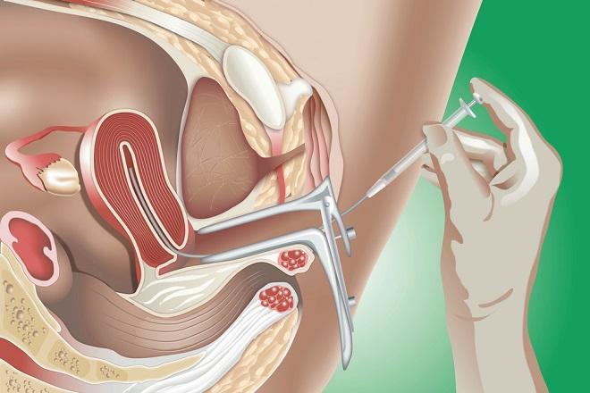 Phương pháp Bơm tinh trùng vào buồng tử cung.
