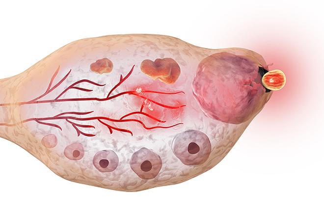 Có các dấu hiệu khác nhau báo hiệu rụng trứng