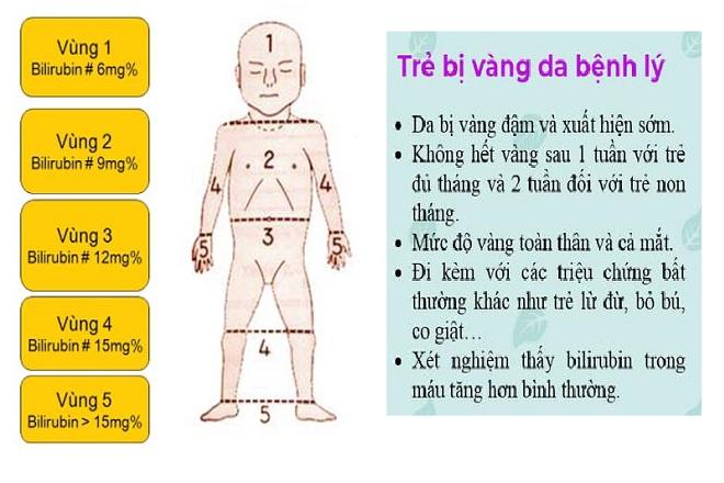 Biểu hiện vàng da bệnh lý