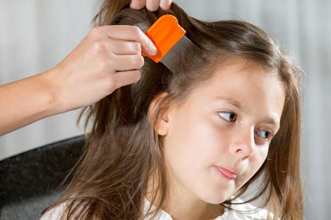 rụng tóc ở trẻ