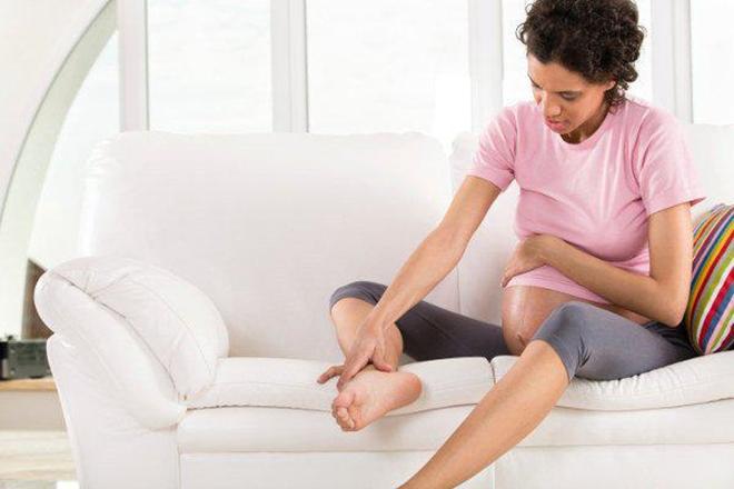 Trên 40 phần trăm bà bầu bị giãn tĩnh mạch trong thai kỳ