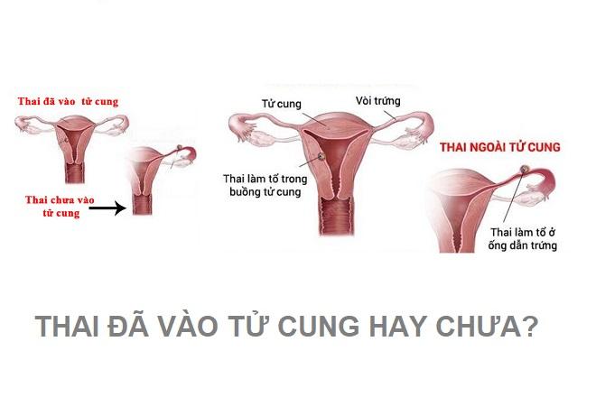 thai vào tử cung