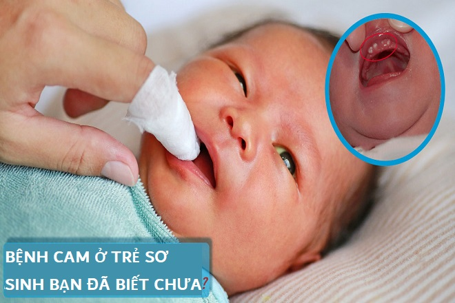 Bệnh cam ở bé
