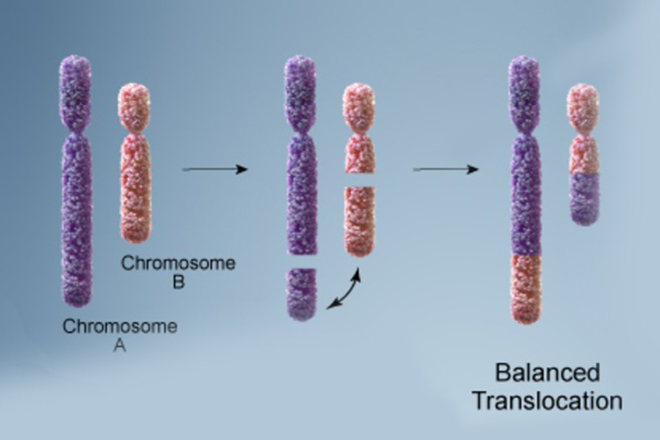 Balanced translocation