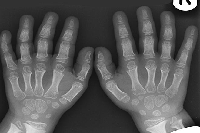Achondroplasia   xương phát triển không hoàn thiện
