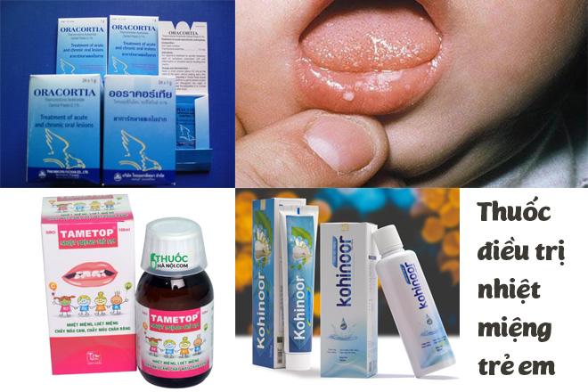 thuốc điều trị nhiệt miệng