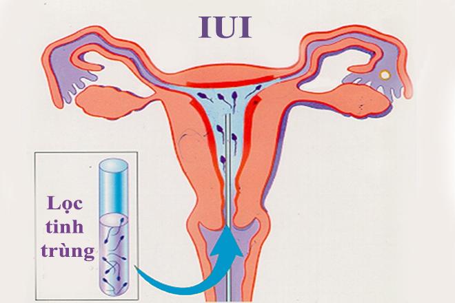 Lọc bơm tinh trùng