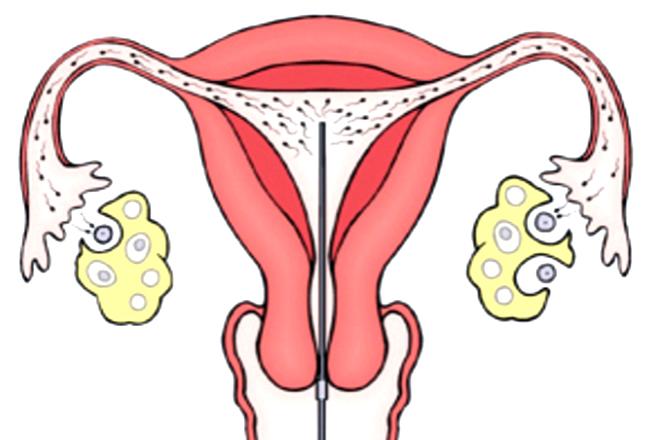 IUI tăng tối đa tinh trùng