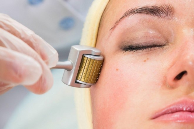 Lăn kim trị sẹo có những ưu điểm và hạn chế gì so với những phương pháp khác