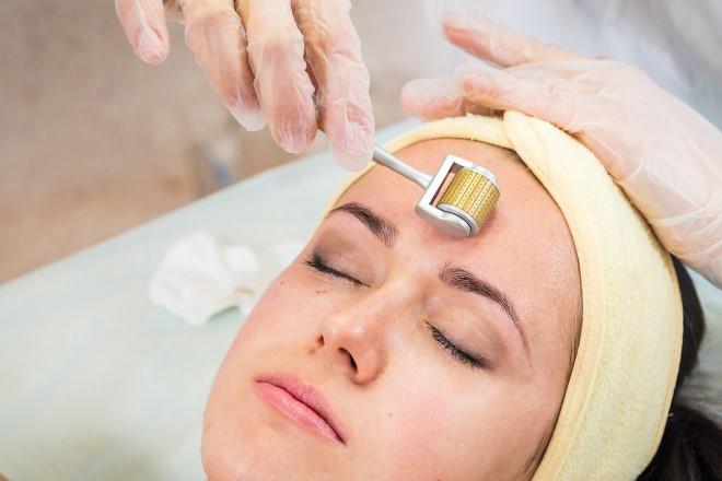 Lăn kim trị sẹo được xem là phương pháp