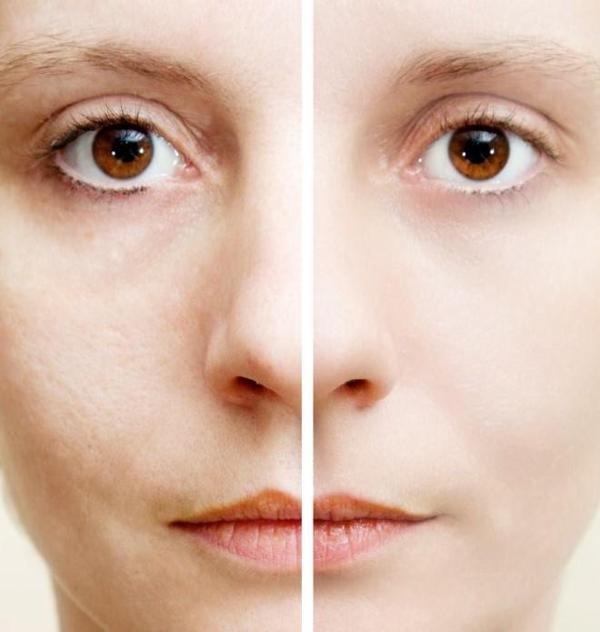 Những lưu ý bạn nên tham khảo về quá trình lăn kim trị sẹo