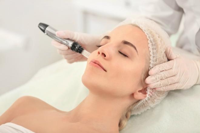 Lăn kim trị sẹo dựa vào cơ chế tự làm lành của cơ thể nhằm loại bỏ tế bào cũ và sản sinh tế bào mới