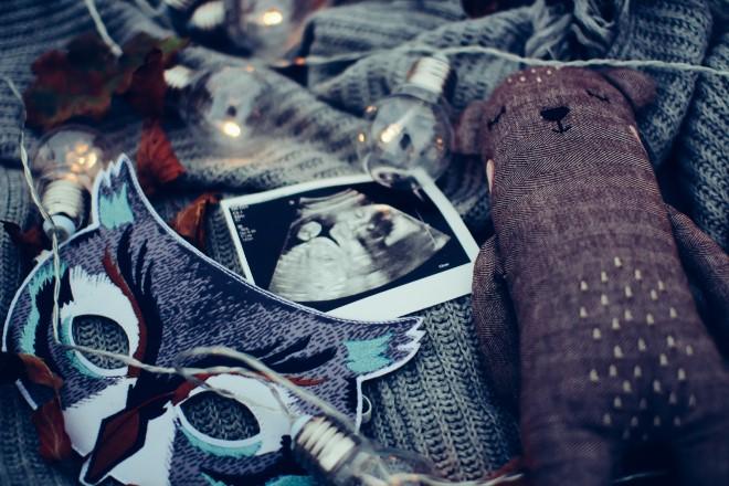 Thai 17 tuần là dấu mốc quan trọng trong thai kỳ của mẹ