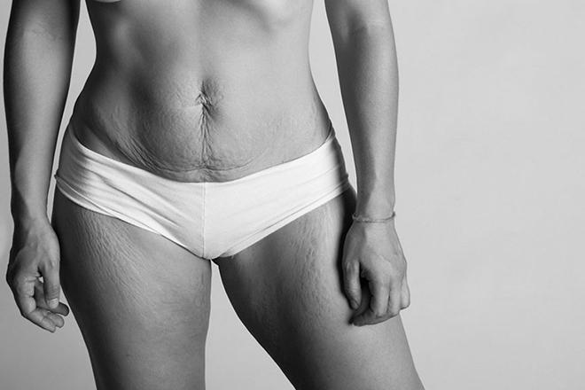 Cơ thể phụ nữ sau sinh