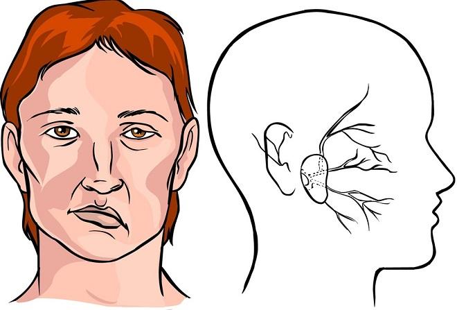 biểu hiện của bệnh đột quỵ