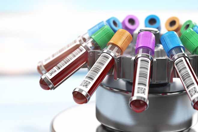 Xét nghiệm nhóm máu