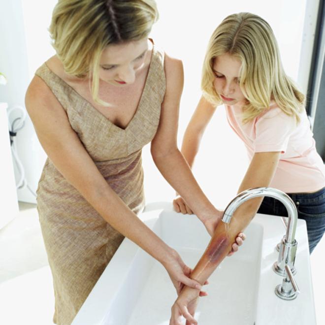 Rửa vết thương cho trẻ
