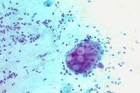 Xử lý những bệnh lây qua đường tình dục trong thời kỳ mang thai