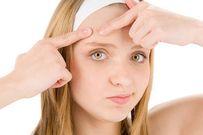 Bí kíp ngăn ngừa và điều trị mụn tuổi dậy thì