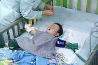 Bé 7 tháng tuổi bị thím ruột đầu độc bằng thủy ngân trong nhiệt kế