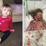 Cái chết cô bé 2 tuổi do viêm màng não cảnh tỉnh nhiều cha mẹ